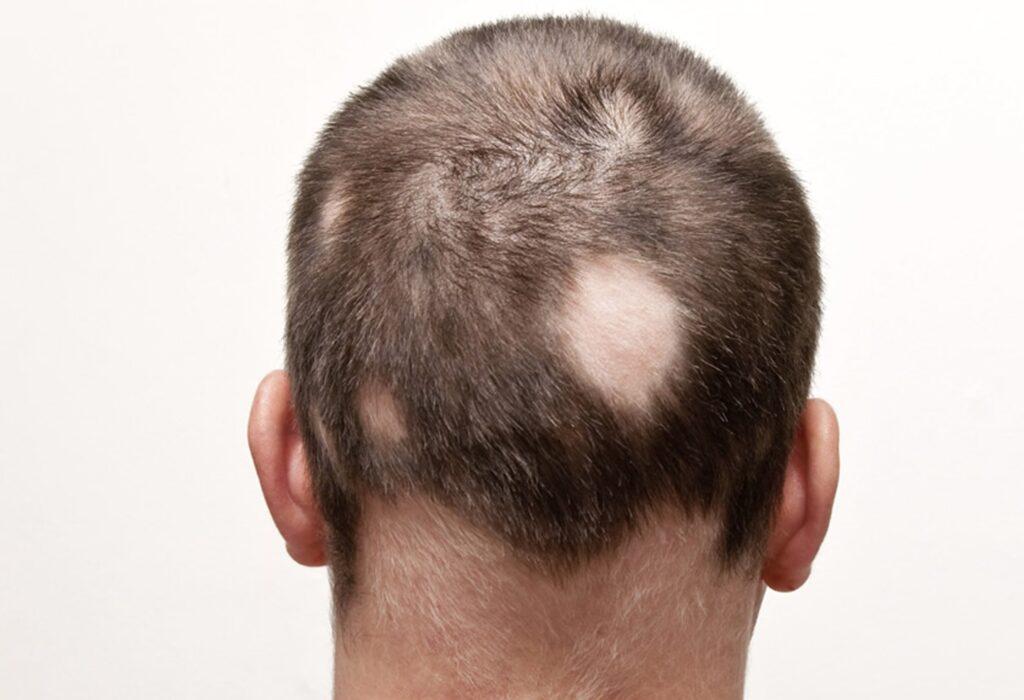 saç-kıran-tipi-saç-dökülmesi